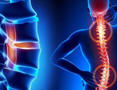 Chronic Pain and the Musculoskeletal System
