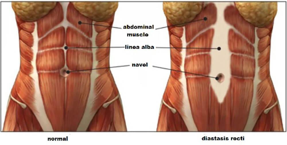 Suffering from Diastasis Recti Cura Centers CT
