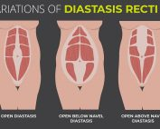 Suffering from Diastasis Recti Cura Centers Torrington CT
